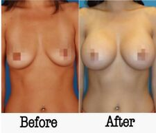 Ubuy Hungary Online Shopping For Breast Actives In Affordable Prices